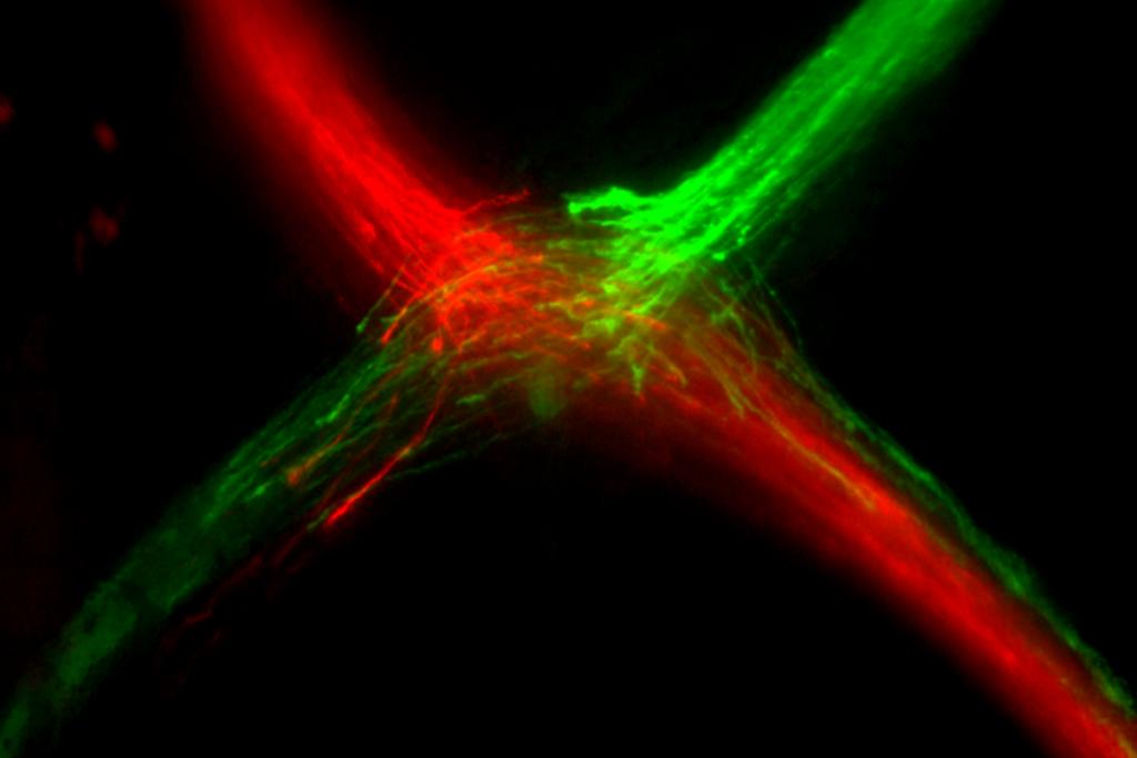 Axones cruzando